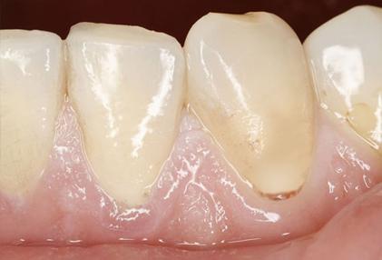 بیماری های دهان و دندان,لثه رنگ پریده و کمخونی