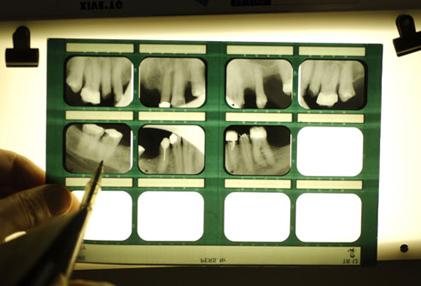 بیماری های دهان و دندان,بیماریهای کلیه