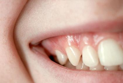 بیماری های دهان و دندان,لثههای سالم