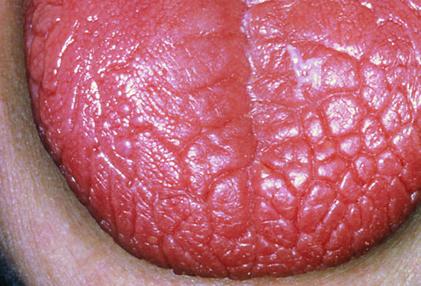خشکی دهان و زبان