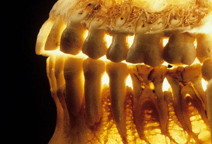 بیماری های دهان و دندان,پوکی استخوان