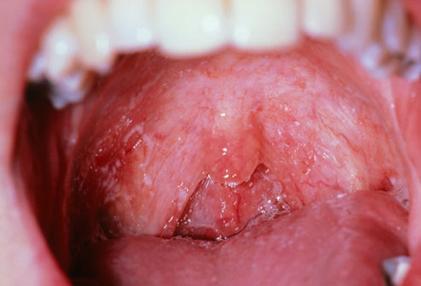 بیماری های دهان و دندان,برفک زبان و اچ آی وی