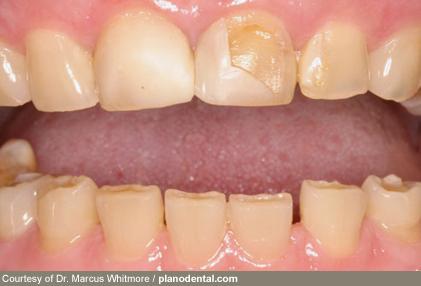 استرس و دندانهای آسیاب