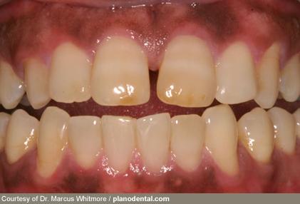 بیماری های دهان و دندان,بیماری دهان و دیابت