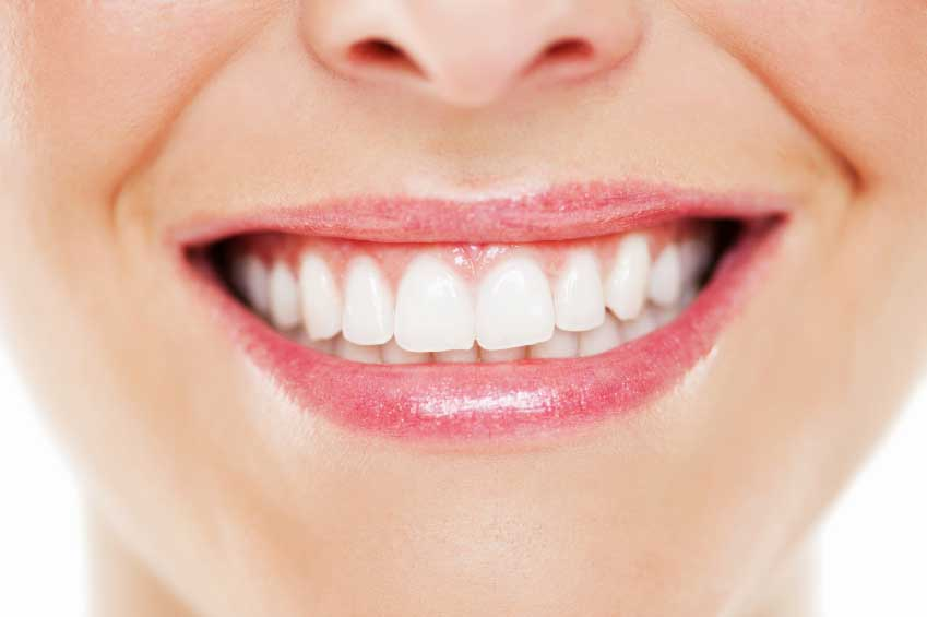 سفید کردن دندان ها به سادگی در منزل