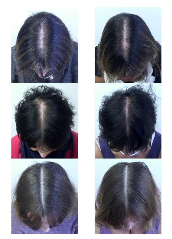 درمان ریزش و کم پشتی مو