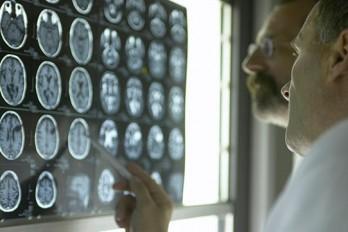 چیزهایی که باید در مورد ضربه مغزی بدانید