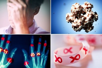 بیماری های شایع در زنان + احتمالا مردان