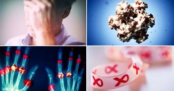 بیماری مشترک بین زنان و مردان