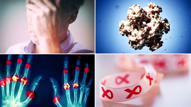 بیماری های رایج زنانه