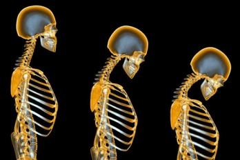 ۷ چیزی که باید درباره پوکی استخوان بدانید