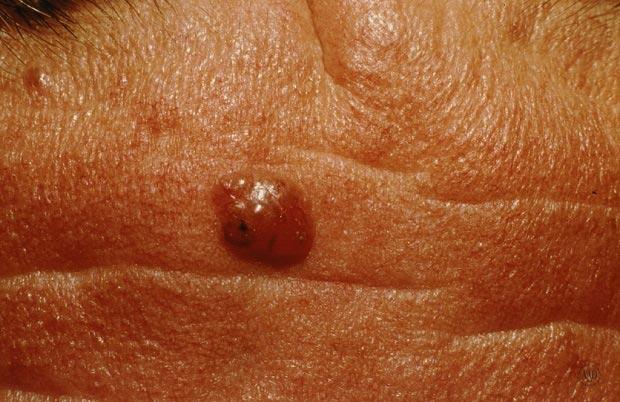 سرطان سلولهای بنیانی