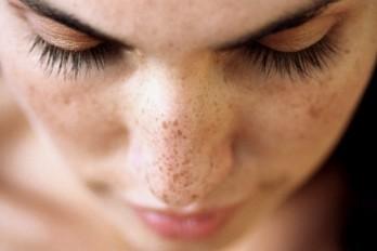 خال گیلاسی،فیبروم پوستی؛ لیست انواع خال و لکه های پوستی