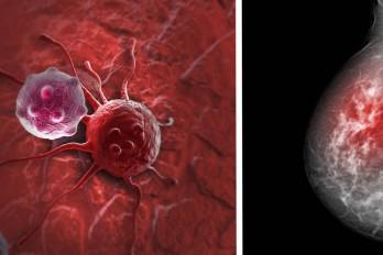 راه های پیشگیری از سرطان سینه