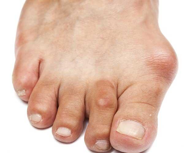 gettyimages 182187682 bunion ziga lisjak آسیب و مشکلات رایج در کمین پاهایتان