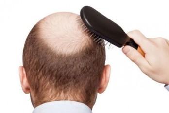 ریزش طبیعی موی سر در روز چقدر است؟