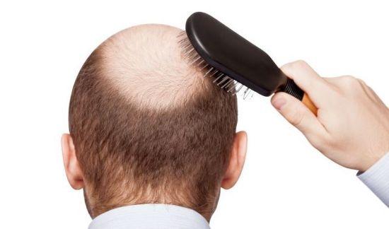 مقدار ریزش طبیعی مو چقدر است