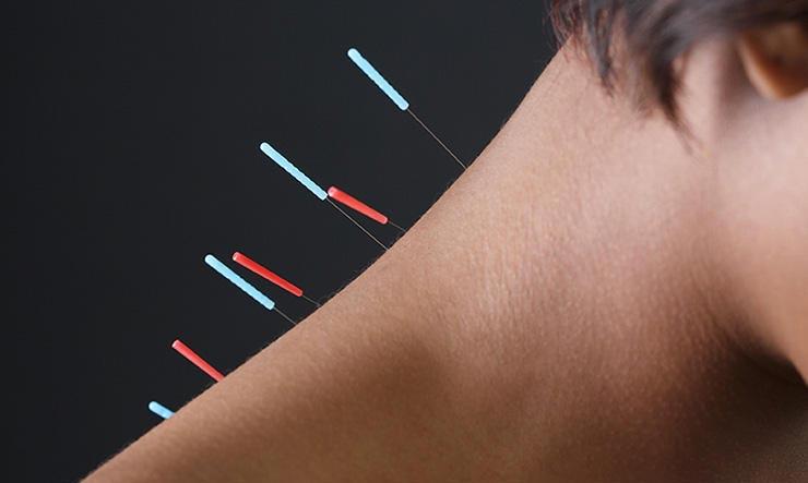 طب سوزنی چه بیماری هایی را درمان میکند؟ حل 9 مشکل با طب سوزنی