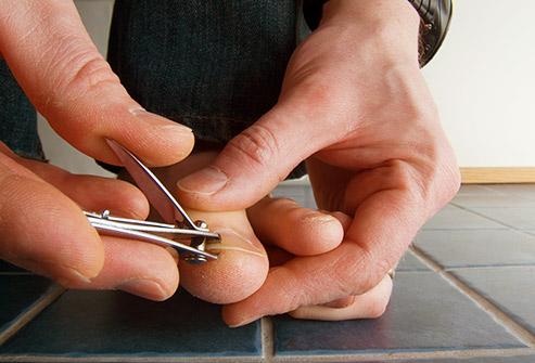 چگونه قارچ ناخن را درمان کنیم