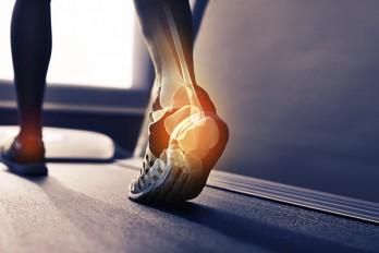۵ دلیل آسیب دیدگی پاشنه پا هنگام پیاده روی