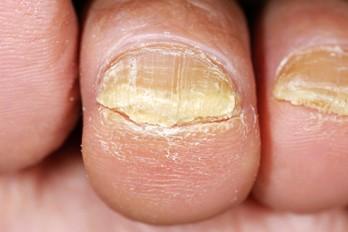چگونه قارچ ناخن را درمان کنیم؟