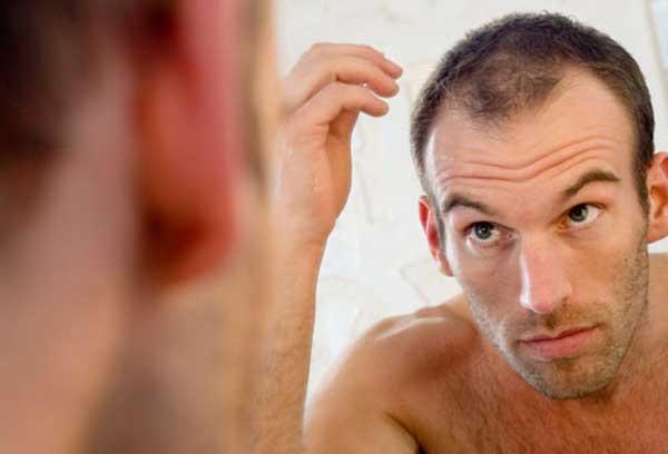 getty rf photo of balding man in mirror علت ریزش مو در مردان و درمان آن سلامت