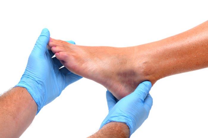 قانقاریا Gangrene