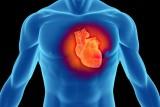 تاکی کاردی Tachycardia