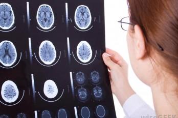 بیماری آتاکسی چیست؟ علائم و درمان آتاکسی