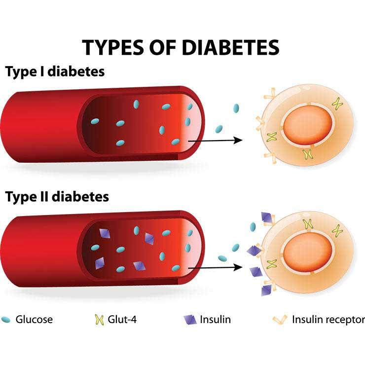 پسوریازیس و چاقی و دیابت نوع 2