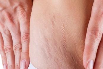 درمان ترکیدگی پوست شکم، ران و باسن