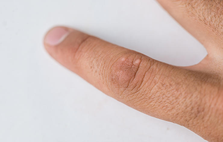 wart-like-skin-cancer