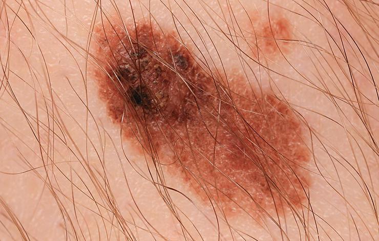 5 نوع خال با احتمال سرطان پوست