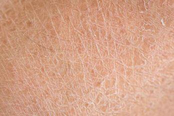 برای رفع خشکی پوست چه بخوریم؟