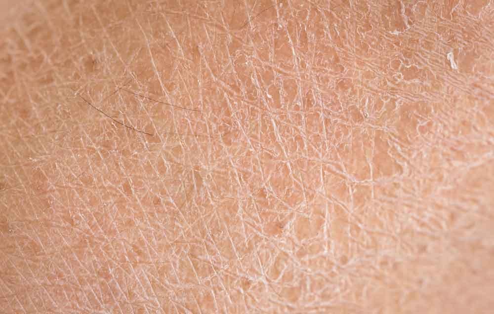 درمان خشکی پوست,پوست خشک