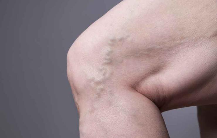 علت ورم پاها,دلیل تورم پا چیست,shutterstock_432495013-cirulation-staras