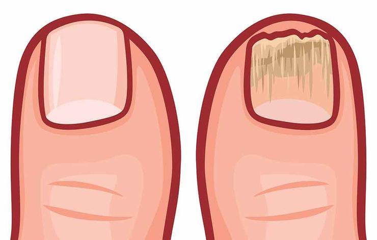 علت ورم پاها,دلیل تورم پا چیست,shutterstock_482163664-infection-tribalium