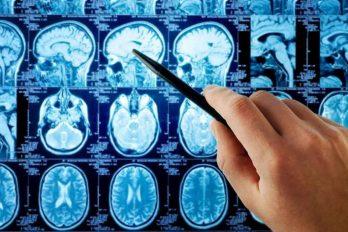 علائم و نشانه های هشدار دهنده تومور مغزی