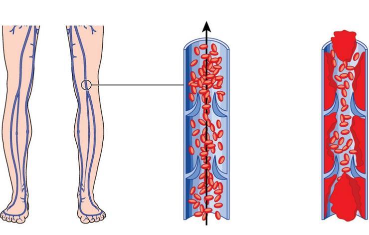 علائم وجود لخته خون,shutterstock_269834381-red-streaks-blambblamb