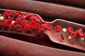 علائم وجود لخته خون در بدن