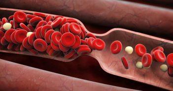 shutterstock_295255976-blood-clot-symptoms-adike-opener