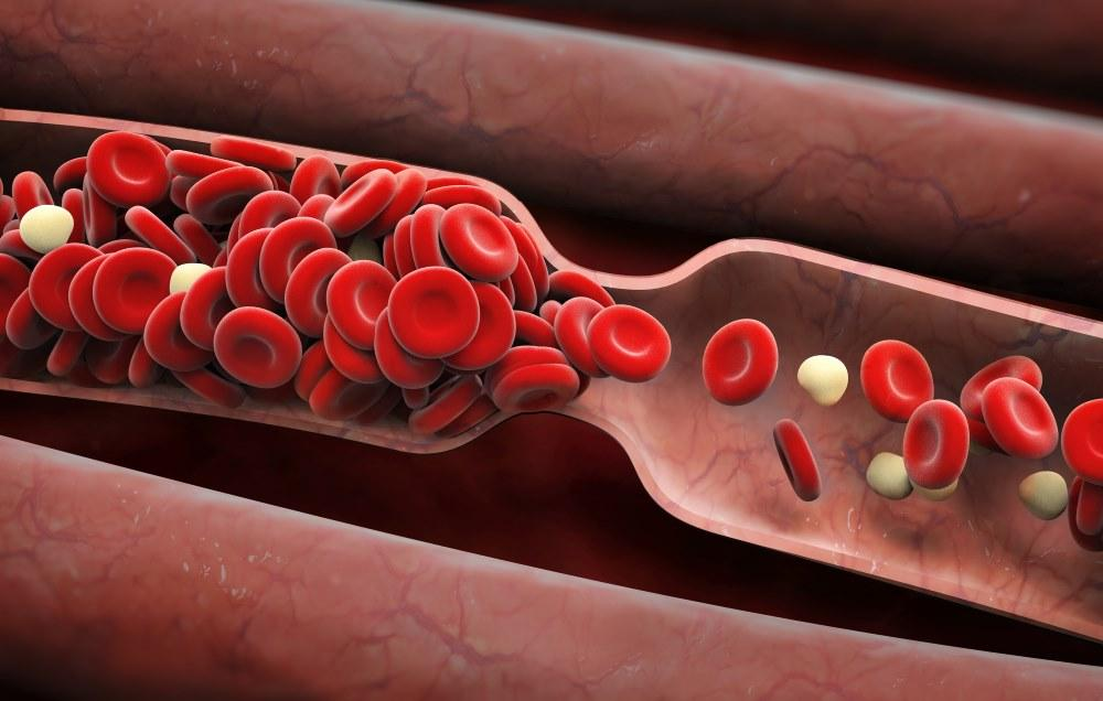 علائم وجود لخته خون,shutterstock_295255976-blood-clot-symptoms-adike-opener