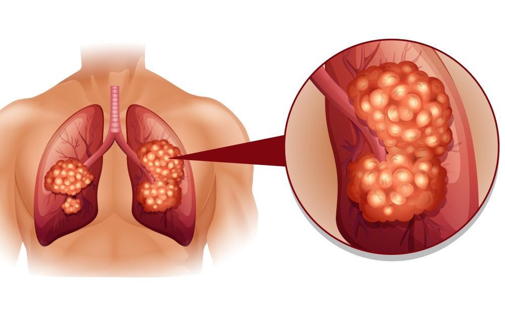 علائم سرطان ریه چیست؟ 7 نشانه شگفت انگیز سرطان