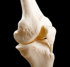 خواص رازیانه,سلامت استخوان bone-joint
