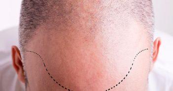 جراحی کاشت مو HairTransplant