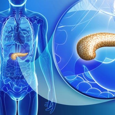 Pancreatitis التهاب لوزالمعده
