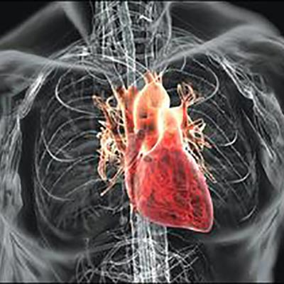 Pericarditis التهاب و تورم غشای دور قلب