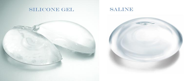 implant_saline_silicone