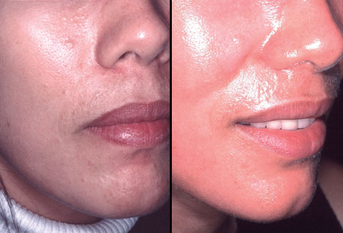 انواع جراحی زیبایی با عکس,لیزر پوست