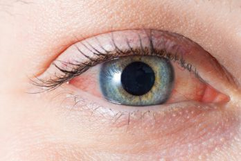 چرا حساسیت میگیریم؟ ۴ دلیل بدتر شدن آلرژی